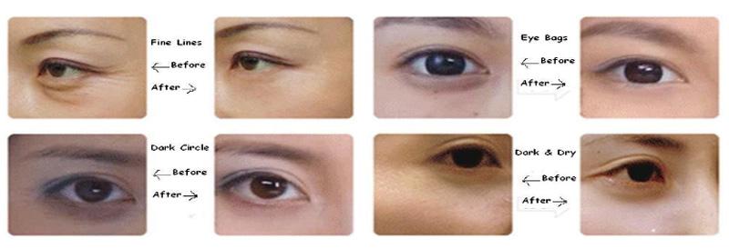 Calla-Eyes Beauty Hyaluronic Acid Collagen Skin Care Lace Eye Mask | Eye Mask-3