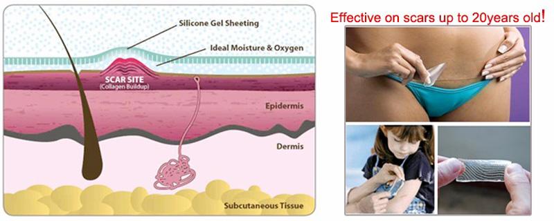 Calla-Find Silicone Pad Scar Treatment best Anti Scar Cream On Calla-1