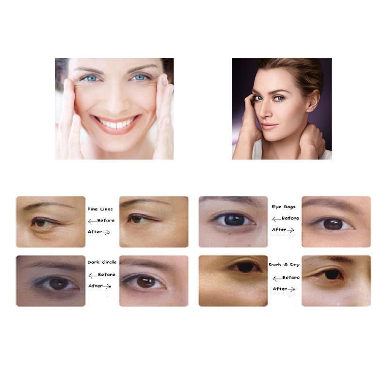 Calla-Oem Odm Eye Mask Products Price List | Calla Skin Care Products Manufacture-4