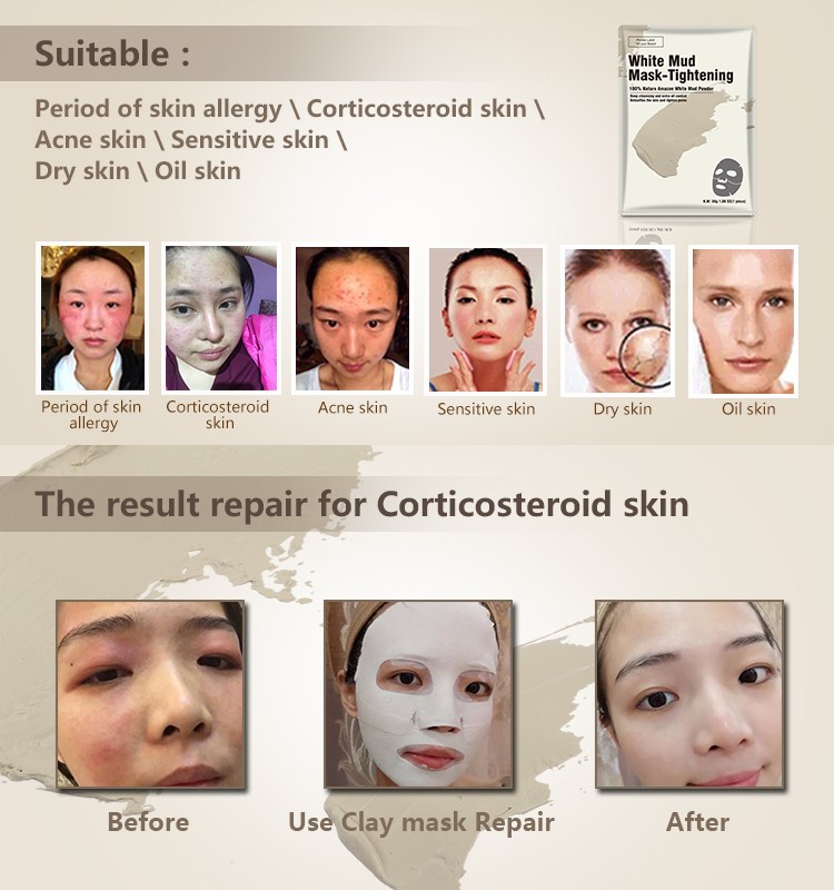 Calla-Oem Odm Anti Aging Skin Care Products, Where Can You Get Face Masks   Calla-3