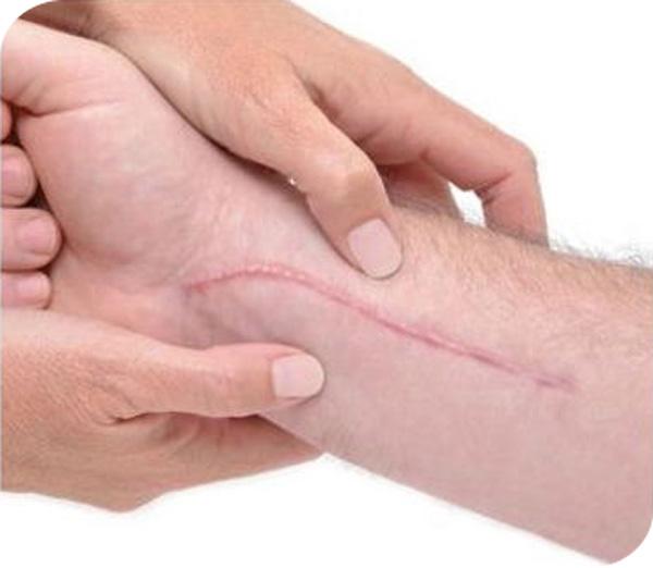 Calla-Find Gmpc Silicone Gel Remove Scar Removal Cream | Manufacture-3