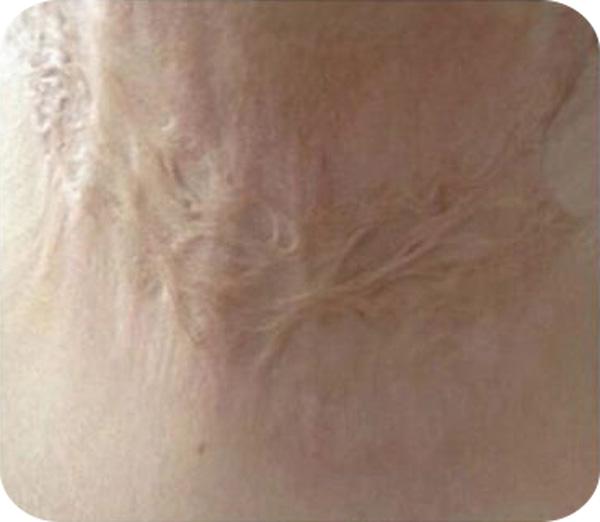Calla-Find Gmpc Silicone Gel Remove Scar Removal Cream | Manufacture-5