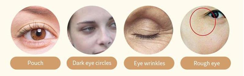 Calla-Hyaluronic Acid Collagen Eye Mask Sheet For Oem | Wholesale Skin Care Manufacturers-1