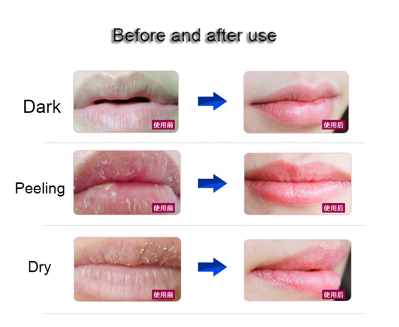 Calla-The Method Of Lip Skin Care | News-3