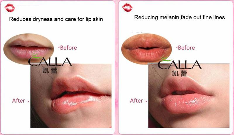 Calla-Sleeping Lip Plumper Mask Oem Good Quality | Best Hydrating Lip Mask Company-6