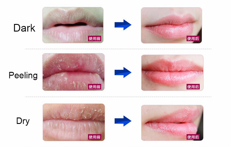 Calla-Find Organic Patch Crystal Collagen Lip Sleeping Mask | Manufacture-5